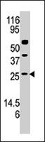 PAB3989 - Adenylate kinase 3 / AK3