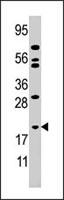 PAB4039 - Adenylate kinase 1 (AK1)