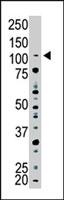 PAB4201 - USP15