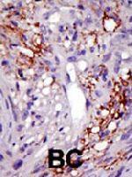 PAB4210 - USP22