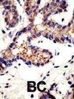 PAB4237 - Ubiquilin-3 (UBQLN3)