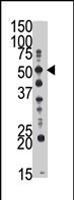 PAB4301 - GCNT1 / NACGT2
