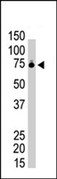 PAB4310 - Ribophorin-1 / RPN1