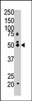 PAB4320 - Squalene synthetase