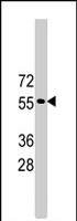 PAB4371 - TRIM69 / RNF36