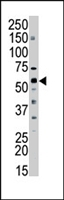 PAB4377 - SPTLC2