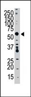 PAB4378 - SPTLC1