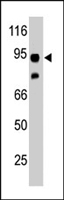 PAB4495 - Synphilin 1 / SNCAIP