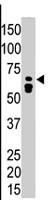 PAB4507 - Myotubularin / MTM1