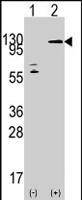 PAB4527 - TAO kinase 3 (TAOK3)