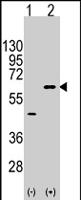 PAB4553 - AKT3 / PKB gamma