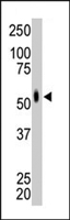 PAB4593 - MKNK2
