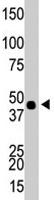 PAB4595 - CKBB