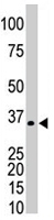 PAB4598 - PRPS1