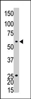 PAB4609 - Ethanolamine kinase 1