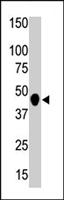 PAB4616 - CKMT2