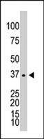 PAB4637 - Galactokinase 1