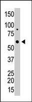 PAB4639 - Galactokinase 1