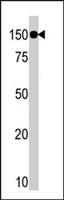 PAB4643 - TAO Kinase 1 (TAOK1)