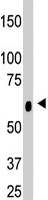 PAB4648 - Ceramide Kinase