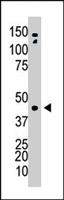 PAB4653 - Adenosine kinase