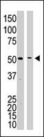 PAB4815 - Presenilin-1