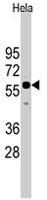 PAB4855 - CDC25A