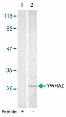 PAB5213 - 14-3-3 protein zeta/delta