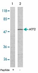 PAB5255 - ATF2