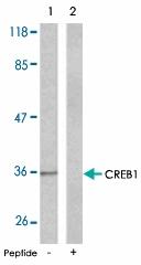 PAB5306 - CREB1