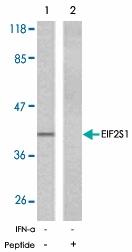 PAB5339 - EIF2A / EIF2S1