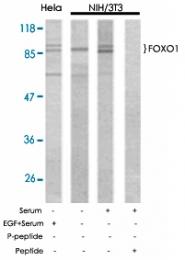 PAB5362 - FOXO1A