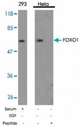 PAB5363 - FOXO1A