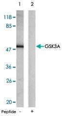 PAB5378 - GSK3 alpha