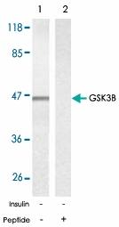 PAB5379 - GSK3 beta