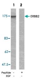 PAB5391 - CD340 / ERBB2 / HER2