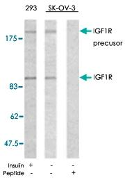 PAB5399 - CD221 / IGF1R