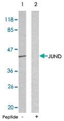 PAB5423 - Jun-D
