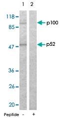 PAB5474 - NFKB2 / NF-kappa-B p100/p52