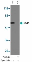 PAB5500 - DOK1 / p62 dok