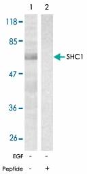 PAB5574 - SHC1 / SHC