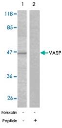 PAB5624 - VASP
