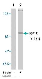 PAB5726 - CD221 / IGF1R