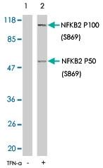 PAB5766 - NFKB2 / NF-kappa-B p100/p52