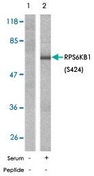 PAB5785 - RPS6KB1 / STK14A