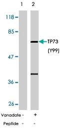PAB5789 - Tumor protein p73 (TP73)