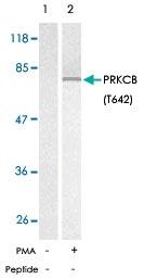 PAB5794 - PRKCB
