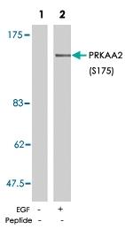 PAB5805 - PRKAA2
