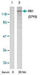 PAB5812 - Retinoblastoma-associated protein / RB1