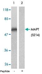 PAB5837 - MAPT / TAU